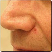 basal cell carcinoma pictures 11