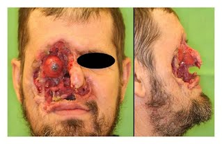 Mohs Micrographic Surgery: An Overview - SkinCancer.org