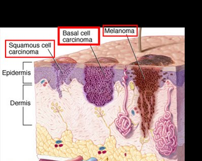 what is basal cell carcinoma? - basal cell carcinoma information, Human Body