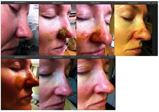 basal cell carcinoma pictures cannabis