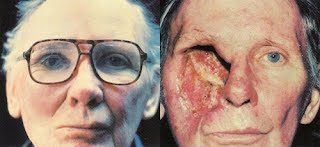basal cell carcinoma pictures eye 2