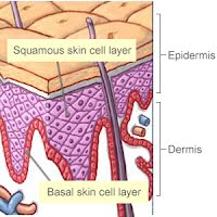 Basal Cell Carcinoma Pictures 3