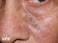 basal cell carcinoma pictures nose