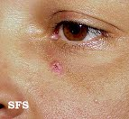 basal cell carcinoma pictures 4