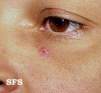 basal cell carcinoma pictures left eye