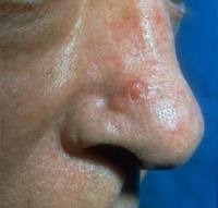 basal cell carcinoma pictures 6